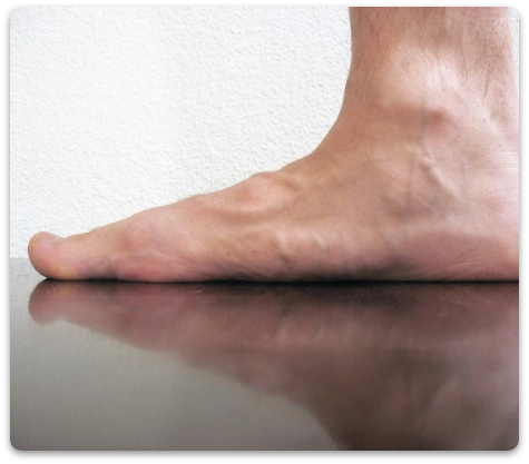Flat foot 3