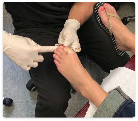 Toe being fixed